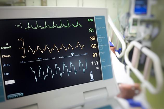 Cardio Monitoring